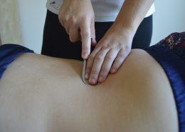tratamiento ciatica almeria