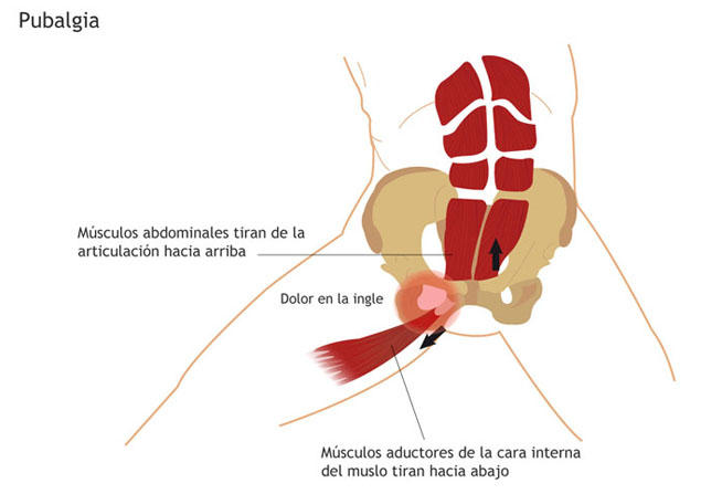 pubalgia almeria