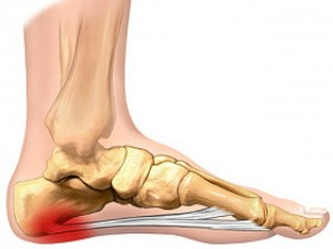 tratamiento lesiones almeria