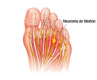 Resultado de imagen de neuroma de morton