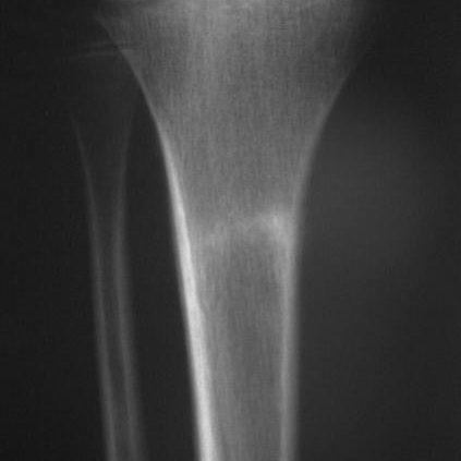 tratamiento fracturas almeria