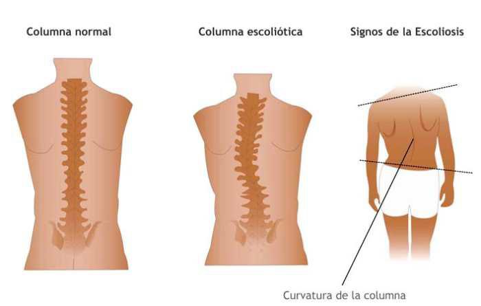 tratamiento escoliosis