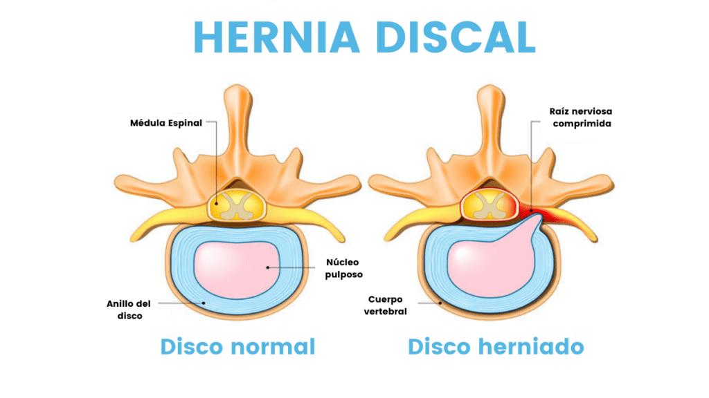 Hernia Discal.